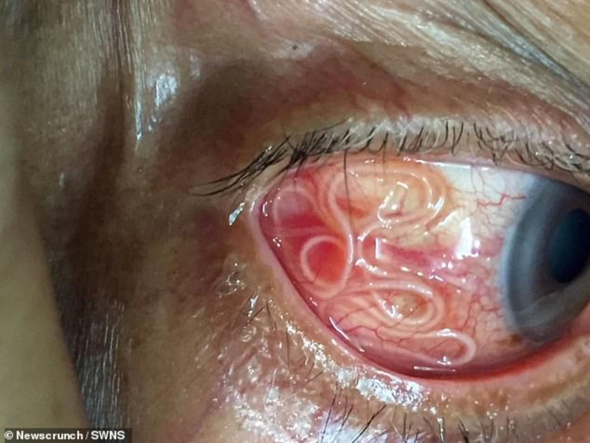 VIDEO: Extraen gusano vivo de 15 cm del ojo de un hombre